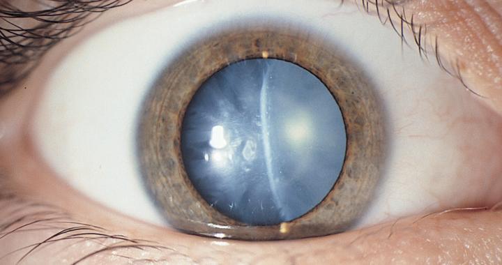 Cataract Causes Symptoms Surgery Complications Happy Eyesight